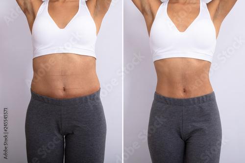 Before And After Diet Concept Obraz na płótnie