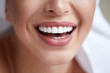 Leinwandbild Motiv Healthy white smile close up. Beauty woman with perfect smile, lips and teeth. Beautiful Girl with perfect skin. Teeth whitening