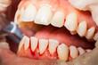 canvas print picture - Zahnreinigung, Zahnfleischbluten