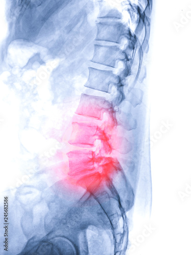Fotografía  X-ray image of lambosacral spine or L-S spine lateral view from patient  lower back pain sign