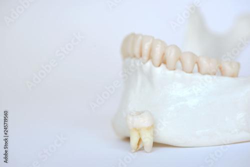 Fotografía  A wisdom molar tooth on human jaw model