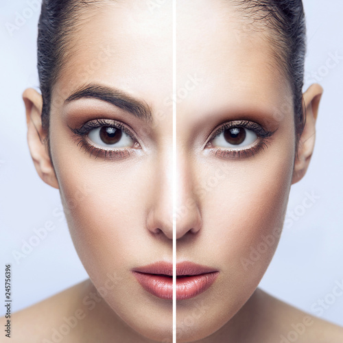 Fotografía  Before and after eyebrows treatment