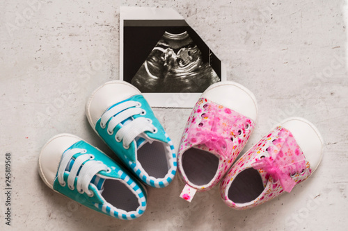 Photo  Blue and pink booties next to baby photos with ultrasound in the 20th week of pregnancy