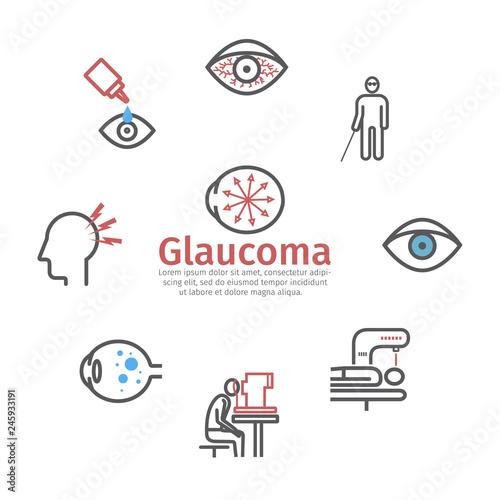 Fotografía Glaucoma banner