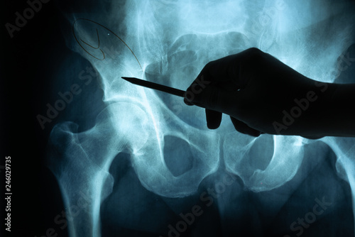 Fotografie, Obraz X ray film with doctor's hand to examine