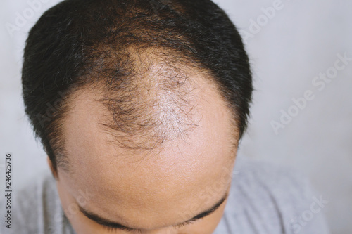 Fotografie, Obraz Close up young man concerned with serious hair loss