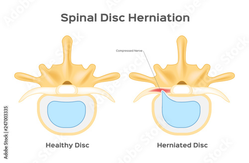 Fotografía  Spinal disc herniation / human back infographic vector