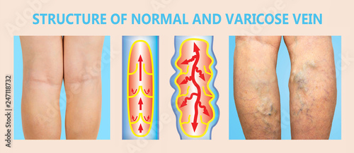 Fotografía  Varicose veins on a female senior legs