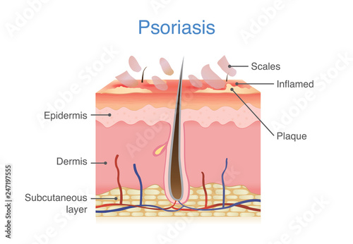 Obraz Illustration of human skin layer when plaque psoriasis signs and symptoms appear. - fototapety do salonu