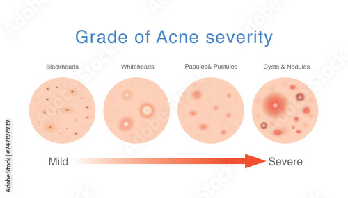Photo Grade of acne severity