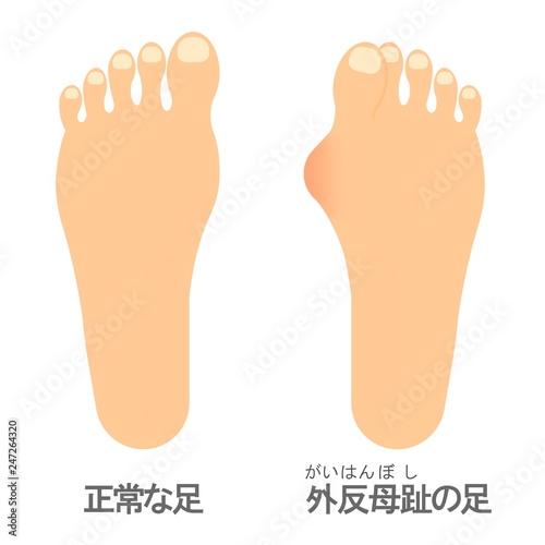 Vászonkép 外反母趾の足と正常な足