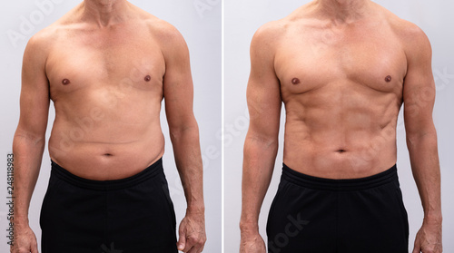 Photo Mature Man Before And After Weight Loss On White Background