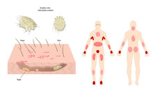 Scabies Mite (scientific Name: Sarcoptes Scabiei), A Contagious Skin Infestation