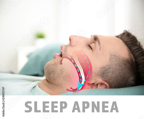 Photo Illustration showing airway during obstructive sleep apnea