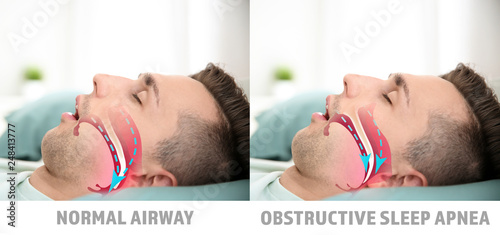 Photo Illustrations showing difference between normal breathing and obstructive sleep