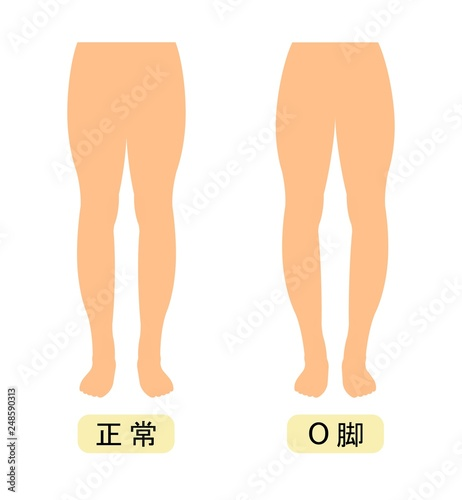 Photo  正常な脚とO脚の違い