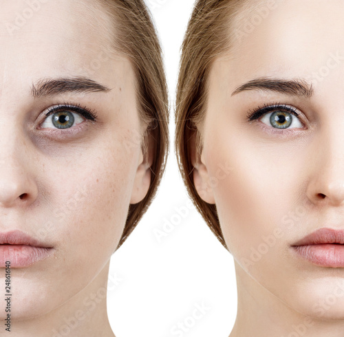 Fotografie, Obraz  Woman with bruises under eyes before and after cosmetic treatment