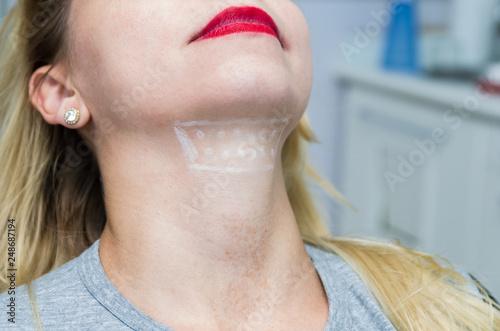 Fotografija Great concept of aesthetic treatment of jowls, injection of deoxycholic acid