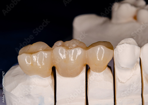 Fotografia, Obraz  zirconia crowns on a plaster model, ready to be inserted