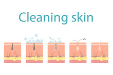 Facial Skin Care, Pore Cleaning. Cleansing Stages On Clogged Face. Skin Cleaning Steps. Vector Illustration.