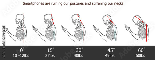 Foto The bad smartphone postures,the angle of bending head related to the pressure on the spine, vector flat cartoon illustration