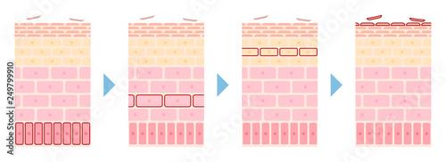 Obraz 皮膚のターンオーバー構造の流れの説明イラスト - fototapety do salonu