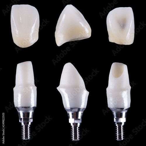 Photo zirconium crown and zirconium hybrid abutment