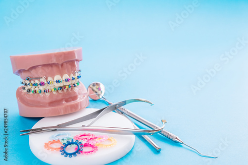 Fotografiet  Dentist tools and orthodontic model on blue background.