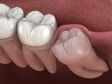 Healthy Teeth And Wisdom Tooth With Mesial Impaction . Medically Accurate Tooth 3D Illustration