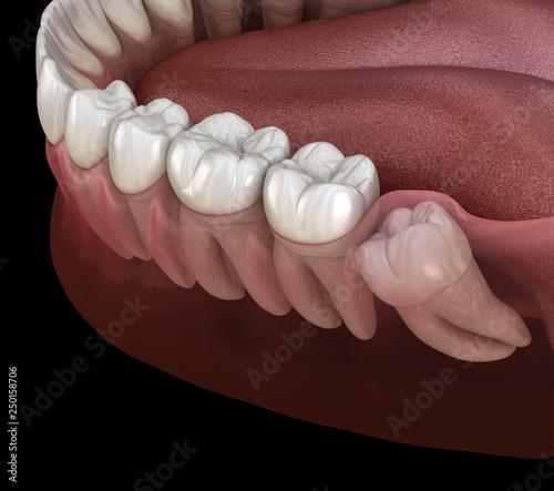 Fotografía Healthy teeth and wisdom tooth with mesial impaction