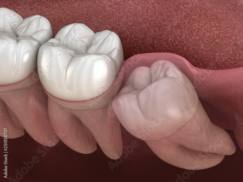 Valokuva Healthy teeth and wisdom tooth with mesial impaction