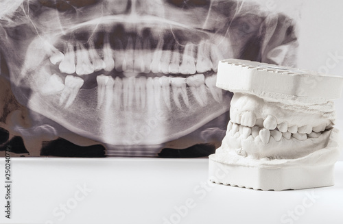 Valokuva Dental casting gypsum model of human jaws with panoramic dental x-ray