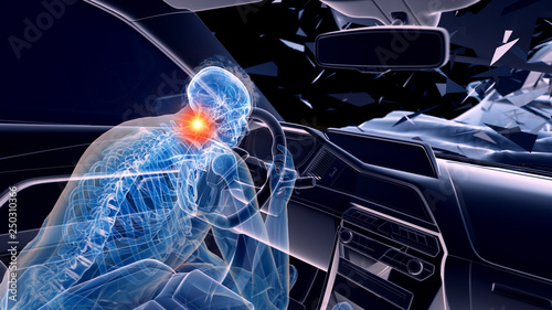 Photo 3d rendered illustration of two colliding cars - illustrating the effect of an i