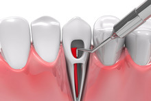Root Canal Treatment Process. ...