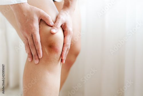 Photo bruised knee of asia woman, selective focus