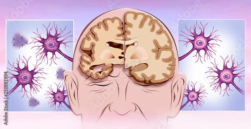 comparación del cerebro en Alzheimer Wallpaper Mural