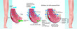 Main stages of edema inflammation illustrated in medical diagram.