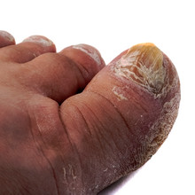Nail Fungus On The Toes,a Disease