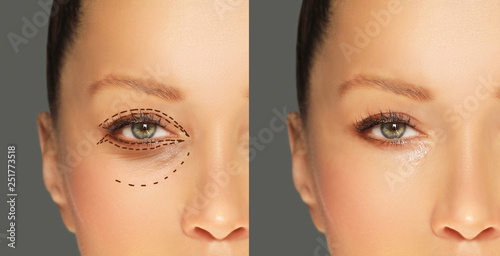 Obraz Lower and upper  Blepharoplasty.Marking the face.Perforation lines on females face, plastic surgery concept. - fototapety do salonu