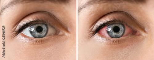 Fotografiet  Young woman with beautiful eyes, closeup