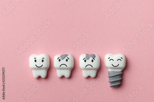 Stampa su Tela  Healthy white teeth and implant are smiling and the tooth is sick with caries sad on pink background