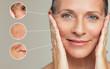 Leinwandbild Motiv Wrinkles and skin imperfection