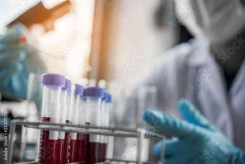 lab technician assistant analyzing a blood sample in test tube at laboratory. Medical, pharmaceutical and scientific research and development concept