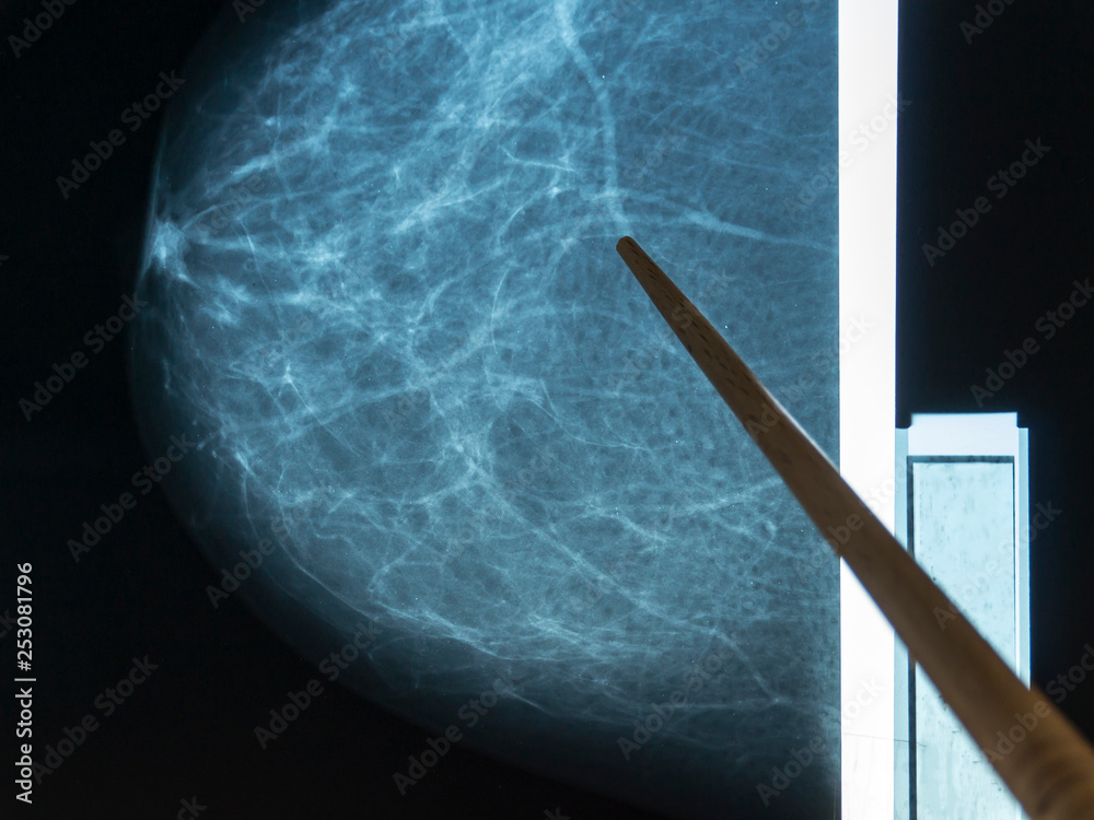 Fototapeta Mammography. The doctor examines pictures of a patient with fibroadenomatosis.