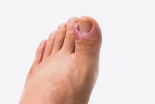 Close Up Of Ingrown Toenail Is Inflamed Fingernails