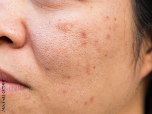Problems facial skin is acne and blemishes. Wallpaper Mural