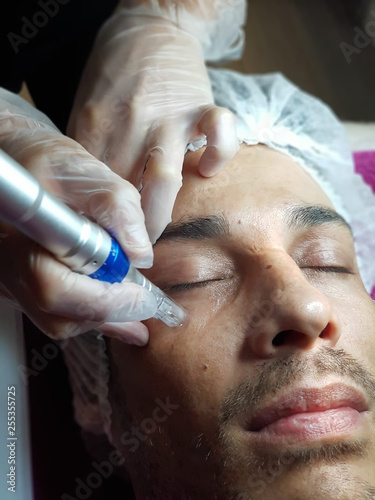 Photo microneedling facial