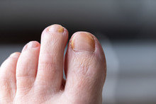 Fungal Nail Infection On Human...