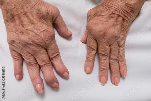 Rheumatoid Arthritis on female hands Canvas Print