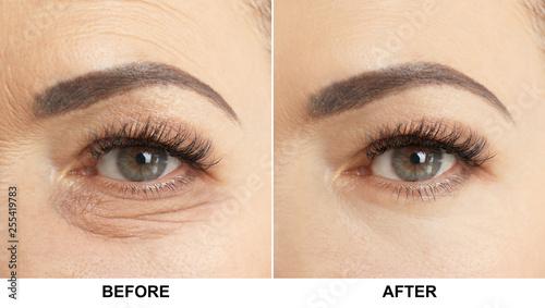 Obraz Beautiful older woman, closeup of eye - fototapety do salonu